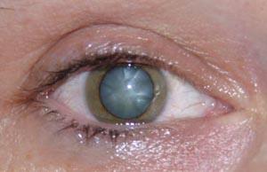 Foto einer getrübten Augenlinse